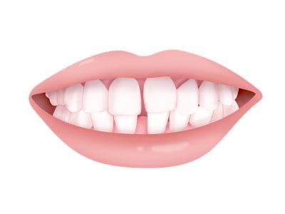 牙齿间隙过大